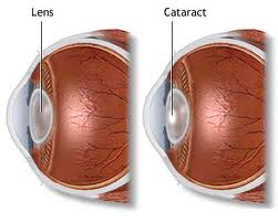 Cataract - symptoms, causes, prevention and natural treatment ...